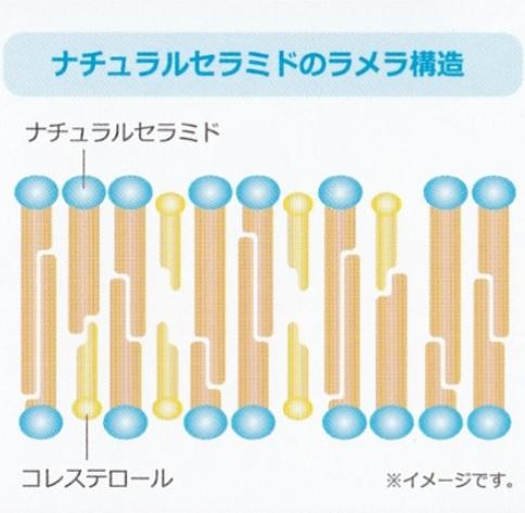 ガルバラメラ構造